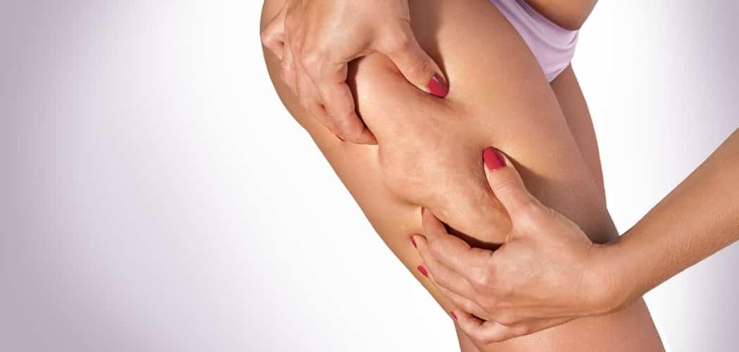 supprimer la cellulite